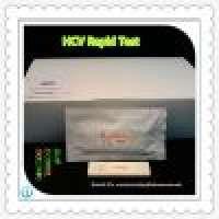 pathology laboratory equipments rapid test HCV Infectious diseases Manufacturer